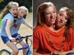 Câu chuyện cặp chị em song sinh với cơ thể dính liền từ chối phẫu thuật tách đôi, nguyện cùng nhau sống trong 1 thân xác-6
