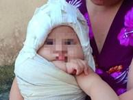 Người nhà 'tố' bác sĩ làm đứt dây chằng cánh tay bé gái mới sinh