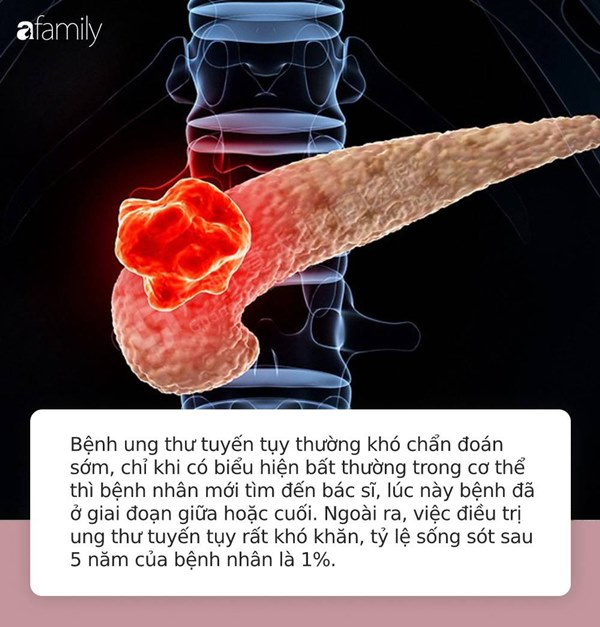 Từ chẩn đoán ung thư tuyến tụy đến tử vong chỉ trong vòng 1 năm: Hãy đi khám gấp nếu cơ thể có 4 điểm lạ này-1
