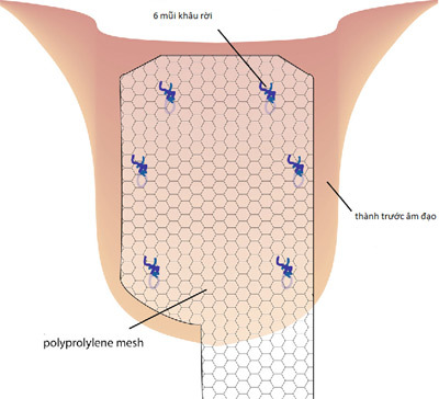Vinmec - điều trị sa sàn chậu bằng kỹ thuật nội soi hiện đại hàng đầu-1