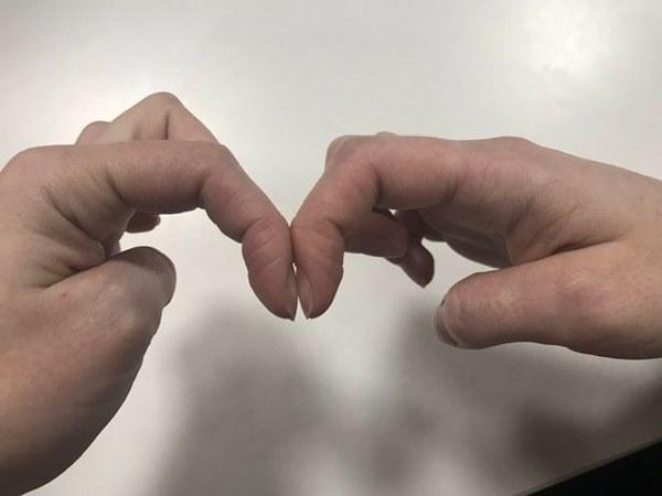 Nhờ bài kiểm tra đơn giản với móng tay, bạn có thể sớm nhận biết mình có bị ung thư phổi hay không-1
