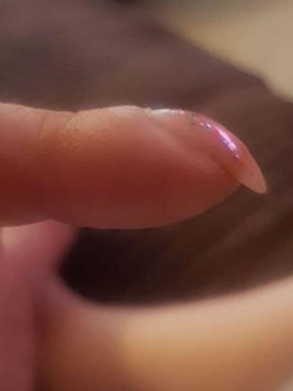 Nhờ bài kiểm tra đơn giản với móng tay, bạn có thể sớm nhận biết mình có bị ung thư phổi hay không-2