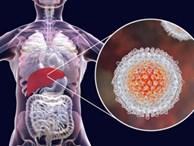 4 dấu hiệu khi đi vệ sinh cảnh báo gan gặp nguy hiểm, chỉ 1 điều cũng cần khám gấp