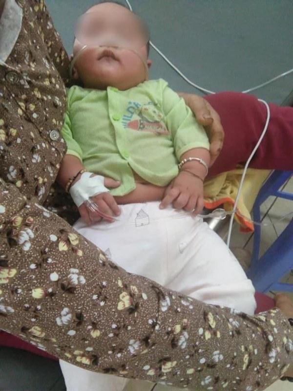 Lại có trường hợp bé gái 4 tháng tuổi tử vong sau khi chữa ho sai cách: Đâu là cách xử lý đúng nhất khi trẻ sơ sinh bị ho?-2