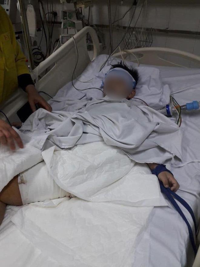 Xót thương hoàn cảnh 2 cháu bé bị cán nát chân trên đường đi học về: Con muốn khoẻ để lại đến trường...-2