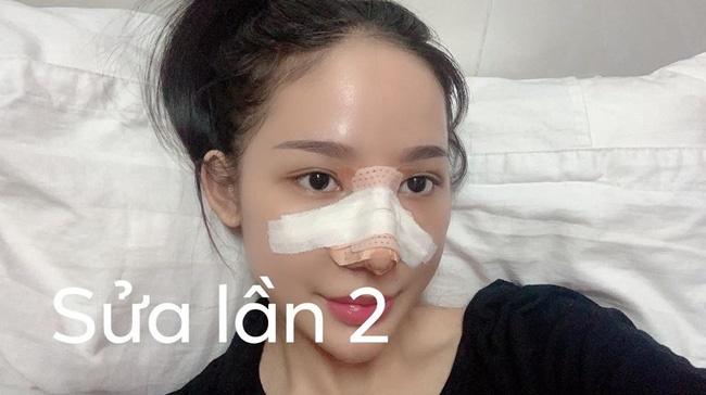 """Câu chuyện kinh hãi"""" của cô gái nâng mũi 4 lần đến mức hết sạch sụn tai, từng trầm cảm, muốn chết vì phẫu thuật hỏng-3"""
