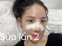 """Câu chuyện """"kinh hãi"""" của cô gái nâng mũi 4 lần đến mức hết sạch sụn tai, từng trầm cảm, muốn chết vì phẫu thuật hỏng"""
