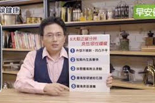 Bác sĩ chỉ ra 5 cách tự phân biệt khối u lành tính và ác tính-1