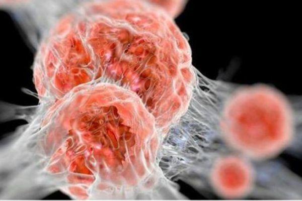Bác sĩ chỉ ra 5 cách tự phân biệt khối u lành tính và ác tính-2