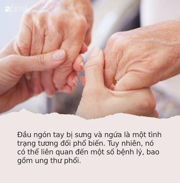 Những dấu hiệu nhìn là thấy của bệnh ung thư ác tính trên bàn tay và bàn chân mà rất nhiều người bỏ qua-1