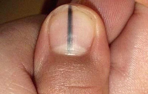 Những dấu hiệu nhìn là thấy của bệnh ung thư ác tính trên bàn tay và bàn chân mà rất nhiều người bỏ qua-3