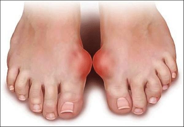 Dấu hiệu ở chân cảnh báo bệnh cực kỳ nguy hiểm, khám ngay kẻo muộn-2