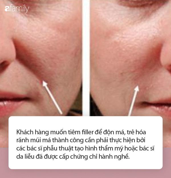 Nhiều người gặp biến chứng do tiêm filler trẻ hóa khuôn mặt, chuyên gia đưa ra khuyến cáo cực quan trọng mà ai cũng cần biết-2