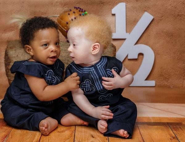 Cặp sinh đôi chào đời cách nhau vài phút nhưng khiến bác sĩ cũng sốc, cả bệnh viện kéo đến chụp ảnh-4