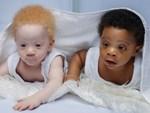 Ca sinh đôi hiếm gặp, một bé chào đời còn nguyên trong bọc ối-2