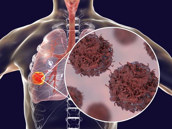 Tế bào ung thư phổi thích nhất khi gặp 4 kiểu người mà ai cũng dễ thấy trong cuộc sống-4