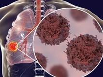 Tế bào ung thư phổi thích nhất khi gặp 4 kiểu người mà ai cũng dễ thấy trong cuộc sống