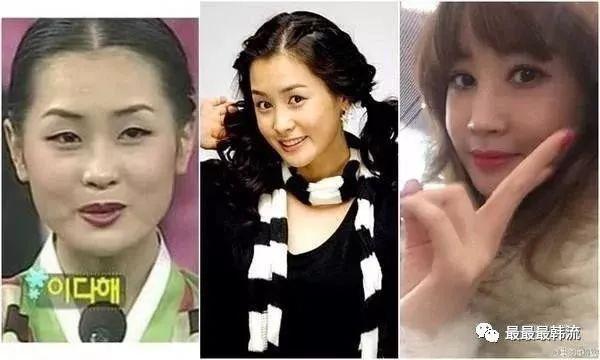 Nữ hoàng dao kéo Lee Da Hae hồi xuân, lấy lại nhan sắc xinh đẹp ngày nào-10