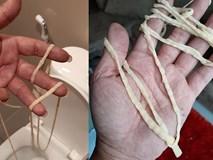 Kinh hãi những ca lấy được sán dài cả mét từ trong cơ thể, làm thế nào để phòng tránh sán dây