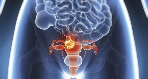 Người phụ nữ đột nhiên có kinh nguyệt sau 6 năm mãn kinh, không ngờ đây lại là tín hiệu của ung thư giai đoạn cuối-3