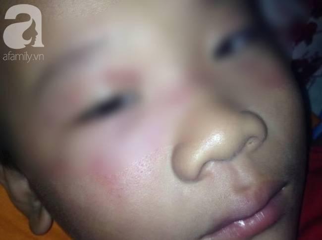 Vụ cha ép con 8 tuổi uống rượu gây phẫn nộ: Người vợ xin dư luận tha thứ cho chồng-3