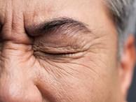 Người đàn ông 50 tuổi bị đột quỵ, mù một bên mắt do thói quen xấu mà nhiều chị em vẫn coi thường