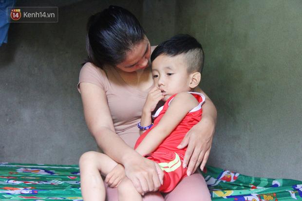Đường cùng của người mẹ tìm cách bán thận cứu con trai 4 tuổi u não, nào ngờ phát hiện bản thân bị viêm gan C giai đoạn cuối-1