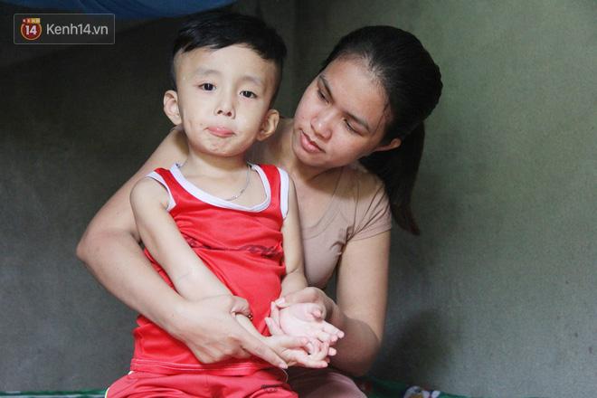 Đường cùng của người mẹ tìm cách bán thận cứu con trai 4 tuổi u não, nào ngờ phát hiện bản thân bị viêm gan C giai đoạn cuối-3