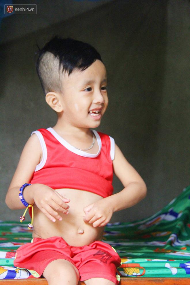 Đường cùng của người mẹ tìm cách bán thận cứu con trai 4 tuổi u não, nào ngờ phát hiện bản thân bị viêm gan C giai đoạn cuối-9