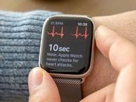 Đây là lý do tôi không dùng Apple Watch hay bất cứ smartwatch nào khác