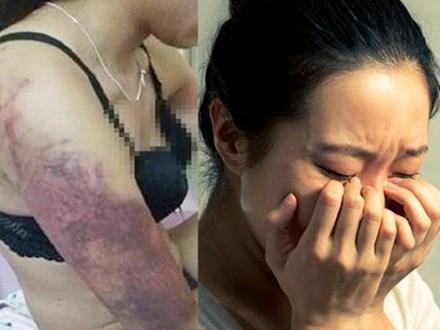 Vô tình nhìn thấy những vết bầm tím trên người chị gái, tôi đã âm thầm theo dõi và phát hiện ra một sự thật kinh khiếp