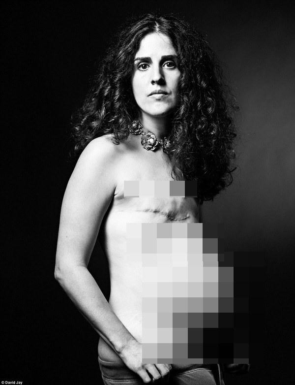 """Nhật ký đau tận xương tủy"""" của nữ bệnh nhân ung thư vú khiến thế giới thêm một lần rùng mình vì căn bệnh đáng sợ này-6"""