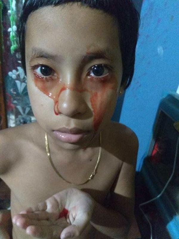 Bé gái 8 tuổi 'khóc ra máu-1