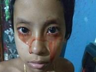 Bé gái 8 tuổi 'khóc' ra máu