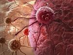 Tiết lộ 5 thực phẩm nên ăn mỗi ngày, giúp ngừa ung thư hiệu quả-6