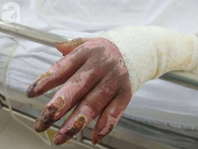 Thương tâm: Bình xăng xe phụt cháy khiến người phụ nữ nghèo bỏng nặng, con trai hiếu thảo hiến da cứu mẹ-6