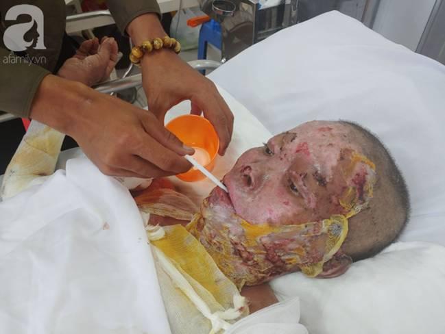 Thương tâm: Bình xăng xe phụt cháy khiến người phụ nữ nghèo bỏng nặng, con trai hiếu thảo hiến da cứu mẹ-10