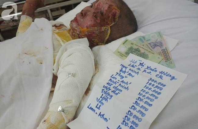 Thương tâm: Bình xăng xe phụt cháy khiến người phụ nữ nghèo bỏng nặng, con trai hiếu thảo hiến da cứu mẹ-14
