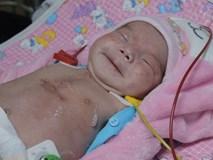 TP.HCM: Mổ khẩn cứu bé sơ sinh nguy kịch trong bụng mẹ vì động mạch phổi nằm sai vị trí