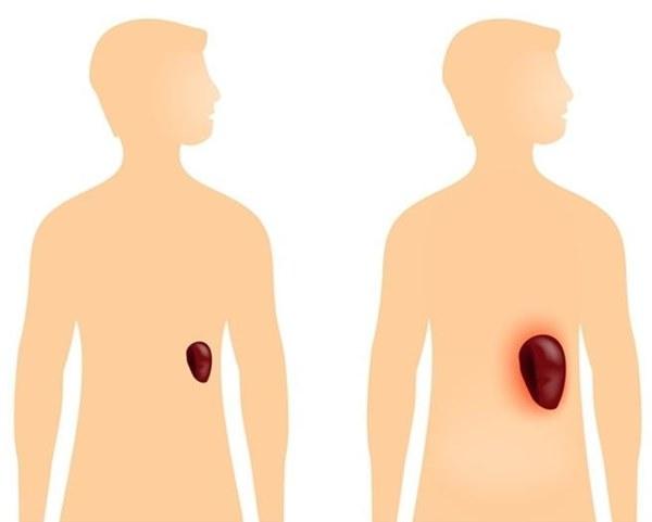 Có 4 triệu chứng khi uống rượu, bạn cần đi khám xơ gan ngay lập tức-5