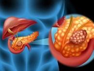 8 dấu hiệu ngầm cảnh báo về loại ung thư 'sát thủ' hiếm gặp nhưng gây tử vong đến 97% nếu phát hiện muộn!
