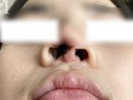 Đi nâng mũi tại spa, thiếu nữ 16 tuổi ở TP.HCM bị nhiễm trùng, biến dạng nặng nề đầu mũi