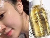 7 loại toner giúp làm sạch cặn bẩn trên da, thực sự thần kỳ để giúp da đẹp rực rỡ đón Tết