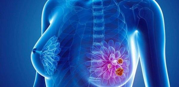 Lời khuyên từ các bác sĩ đã bị ung thư: Tư tưởng không tốt là thủ phạm gây ung thư số 1-5
