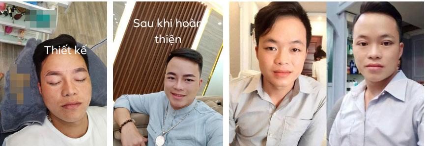 Chồng cô dâu 62 tuổi ở Cao Bằng gây sốc với diện mạo như trai Hàn Quốc sau khi phẫu thuật thẩm mỹ-3