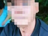 Bộ sưu tập kinh hoàng của sát nhân cuồng dâm: Gã đàn ông mặt đầy tàn nhang