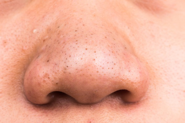Người có gan kém thường có 3 biểu hiện tối đen trên khuôn mặt, check xem bạn có biểu hiện nào hay không-3