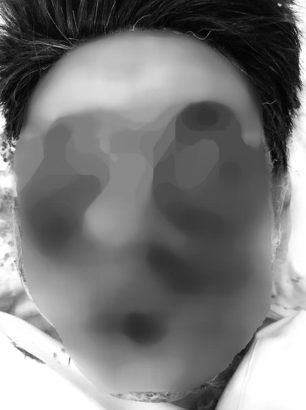 Rùng mình với khuôn mặt dập nát của người đàn ông do đốt pháo tự chế-1