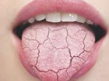 Uống nước nhiều nhưng vẫn thấy khô miệng, hãy cẩn thận bởi đây là dấu hiệu của hàng loạt bệnh nguy hiểm