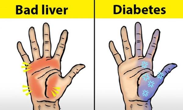 Người có chức năng gan ổn định sẽ không có 4 điểm sau trên đôi tay, cùng xem bạn có điểm nào hay không-1